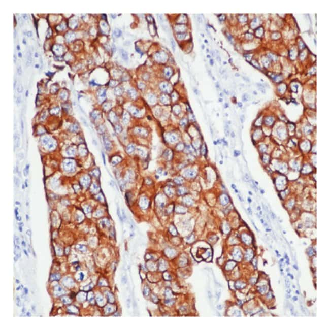 Thermo Scientific Lab Vision Cytokeratin 8/18 Ab-2, Mouse Monoclonal Antibody::