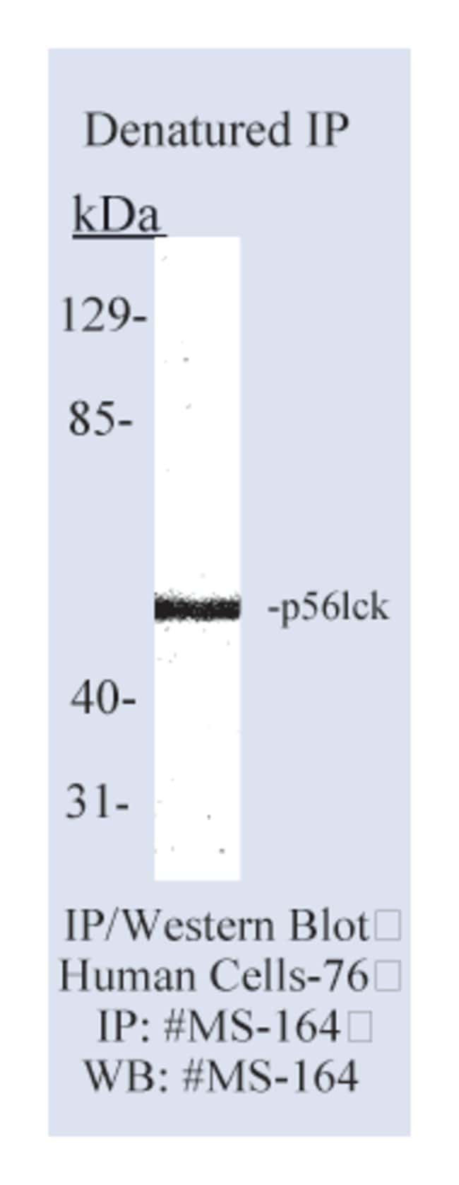 Thermo Scientific Lab Vision LCK (p56 lck) Ab-1, Mouse Monoclonal Antibody::
