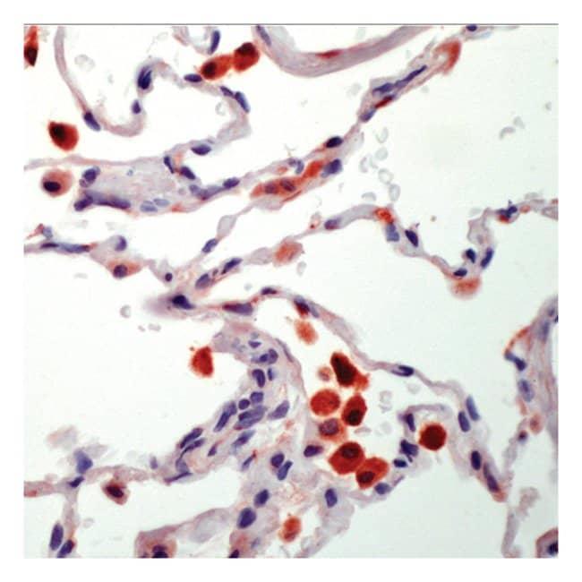 Thermo Scientific Lab Vision Tartrate Resistant Acid Phosphatase (TRAP)