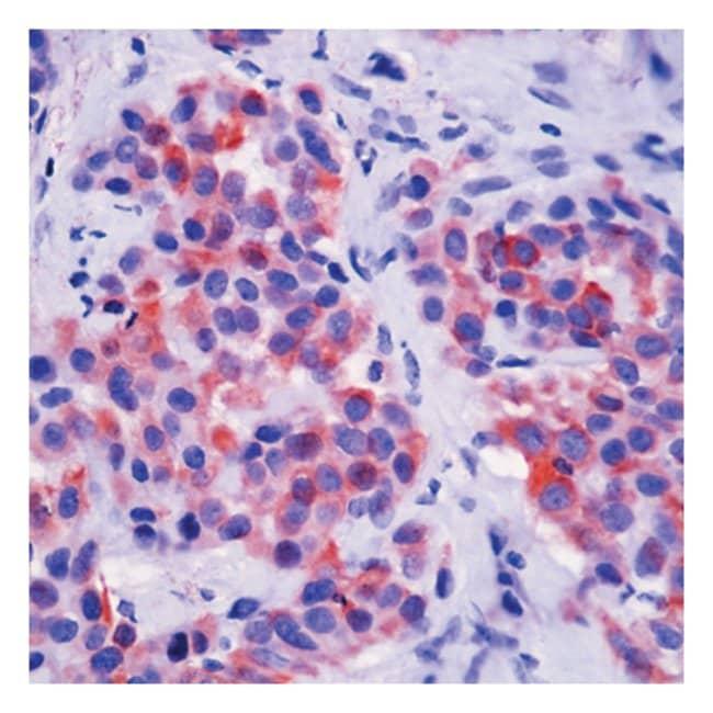 Thermo Scientific Lab Vision Cytokeratin 5 Ab-1, Mouse Monoclonal Antibody::