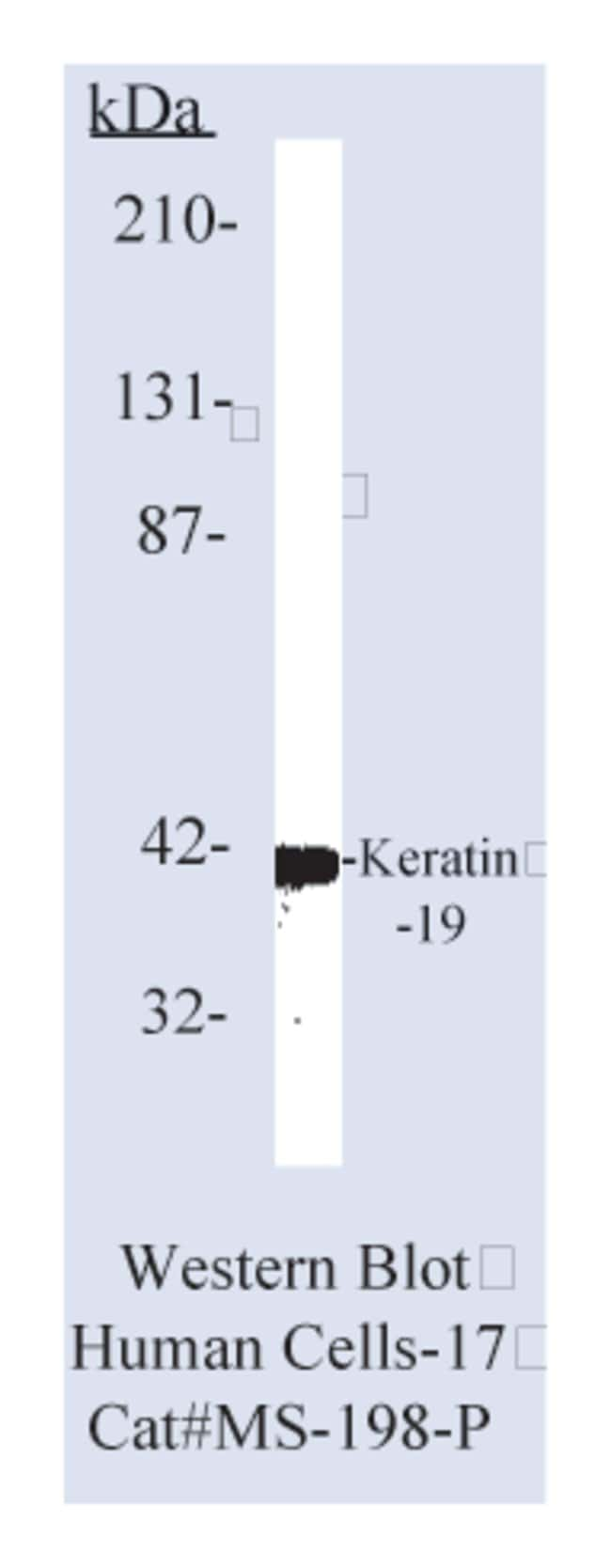 Thermo Scientific Lab Vision Cytokeratin 19 Ab-1, Mouse Monoclonal Antibody::