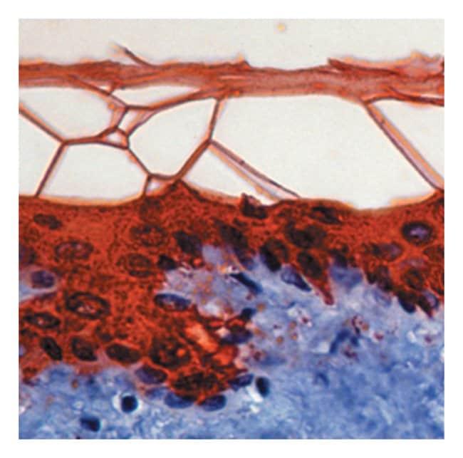 Epredia™Lab Vision™ Cytokeratin 10 Ab-2 Mouse Monoclonal Antibody, 200µg/mL, biotinylated, BSA and azide 500μL; 200μg/mL; Biotin labeled with BSA and azide Epredia™Lab Vision™ Cytokeratin 10 Ab-2 Mouse Monoclonal Antibody, 200µg/mL, biotinylated, BSA and azide