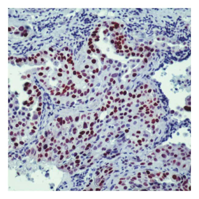 Epredia™Lab Vision™ TTF-1 (Thyroid Transcription Factor-1) Ab-1 Mouse Monoclonal Antibody, 88µg/mL, biotinylated, BSA and azide 7mL; Unlabeled; Ready-to-use format Epredia™Lab Vision™ TTF-1 (Thyroid Transcription Factor-1) Ab-1 Mouse Monoclonal Antibody, 88µg/mL, biotinylated, BSA and azide