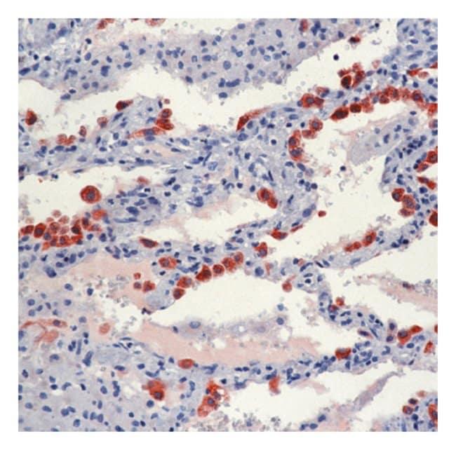 Thermo Scientific Lab Vision Surfactant Protein B (Precursor) Ab-1, Mouse