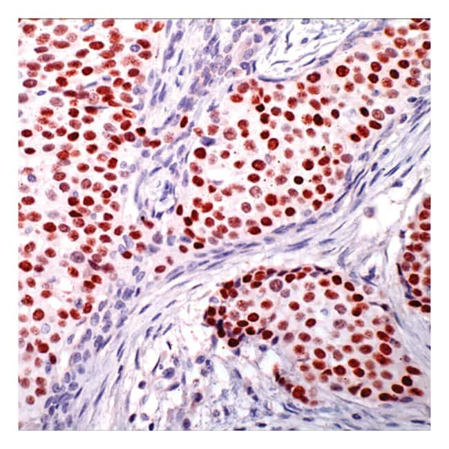 Thermo Scientific Lab Vision Progesterone Receptor, Rabbit Polyclonal Antibody::
