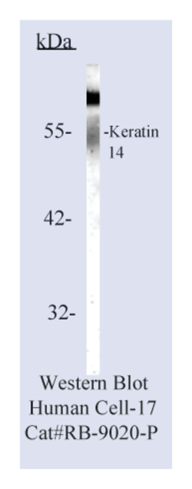 Thermo Scientific Lab Vision Cytokeratin 14, Rabbit Polyclonal Antibody::