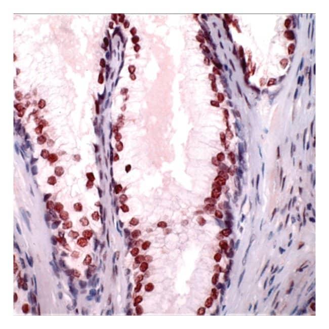 Thermo Scientific Lab Vision Androgen Receptor, Rabbit Polyclonal Antibody::