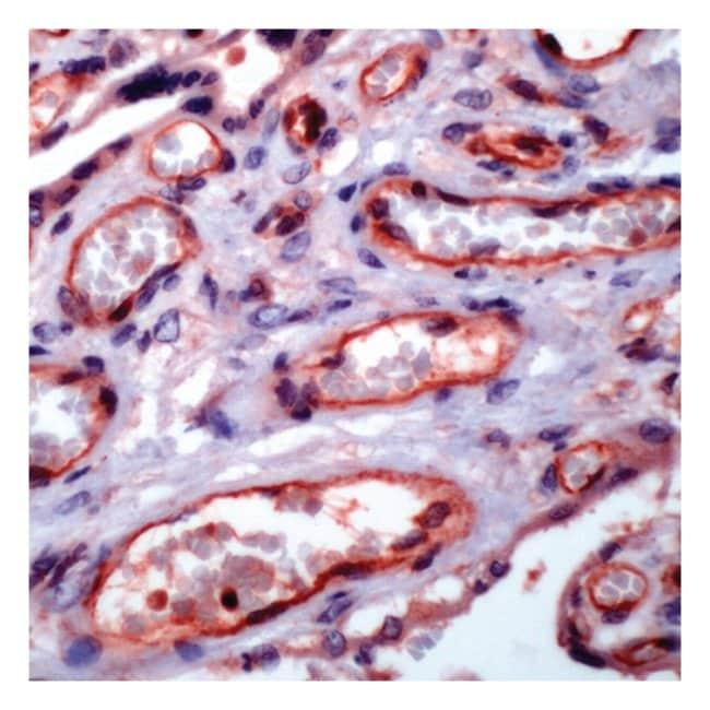 Thermo Scientific Lab Vision NF B/p65 (Rel A), Rabbit Polyclonal Antibody::