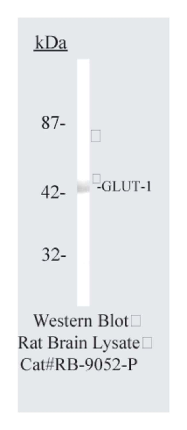 Thermo Scientific Lab Vision GLUT-1, Rabbit Polyclonal Antibody::