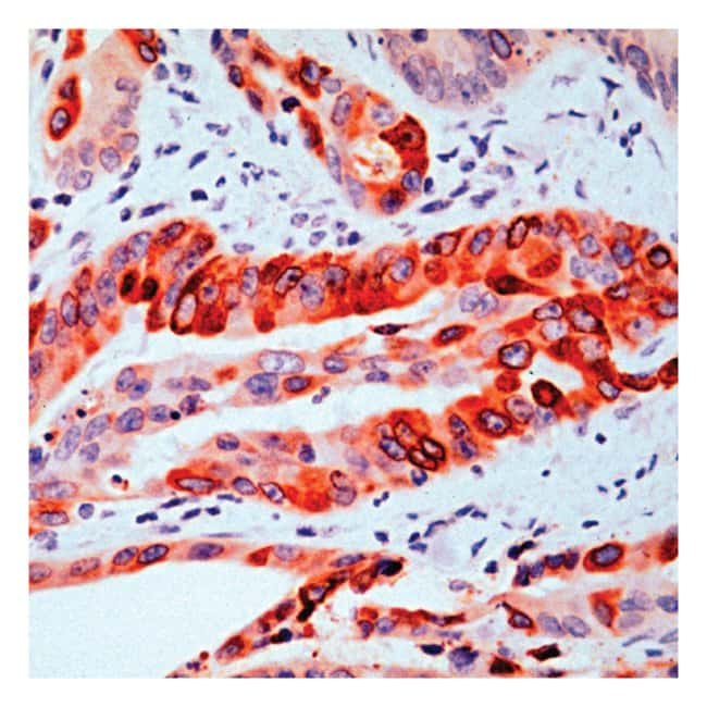 Thermo Scientific Lab Vision COX2, Rabbit Polyclonal Antibody::