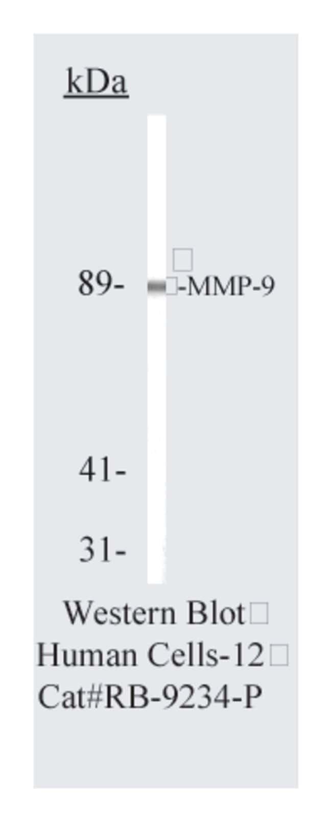Thermo Scientific Lab Vision MMP-9 (92kDa Collagenase IV), Rabbit Polyclonal