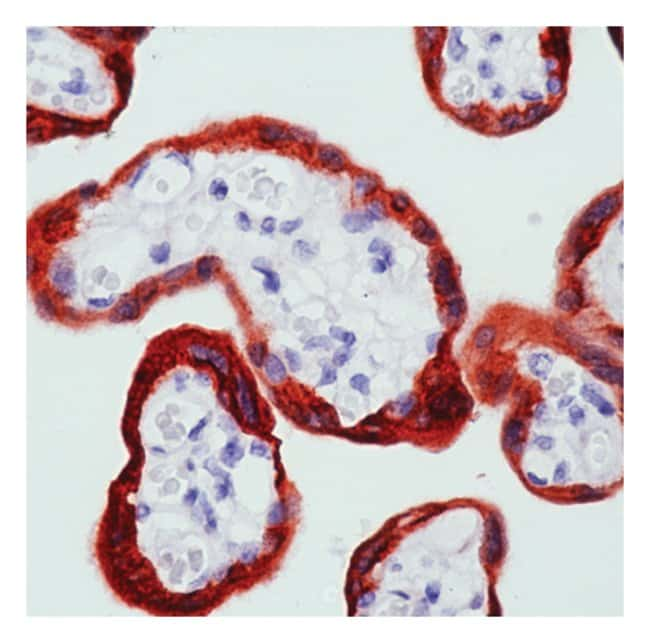 Thermo Scientific Lab Vision c-Abl Ab-1, Mouse Monoclonal Antibody::