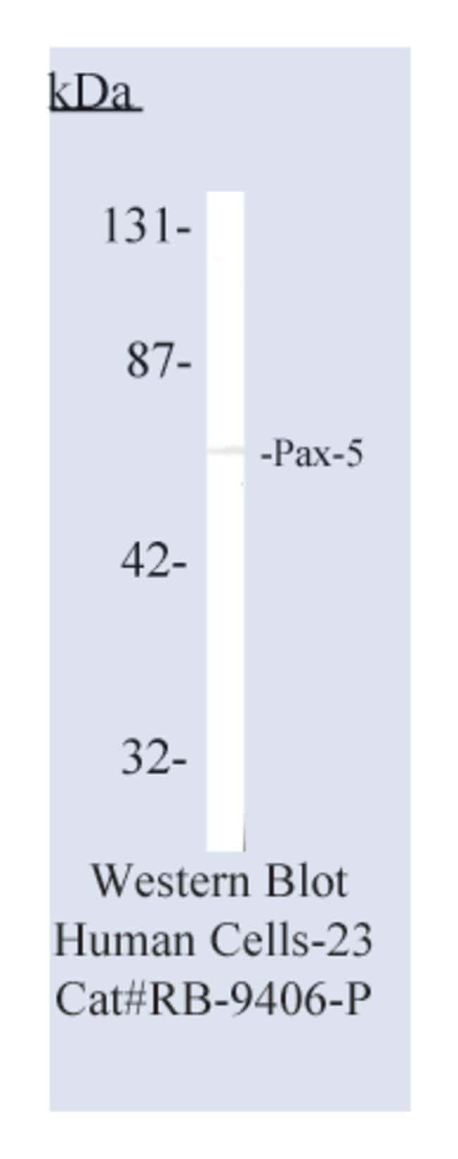 Thermo Scientific Lab Vision Pax-5, Rabbit Polyclonal Antibody::