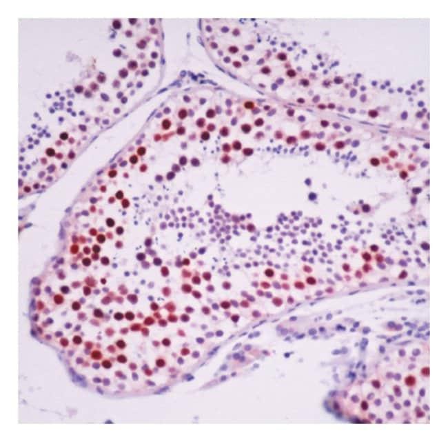 Thermo Scientific Lab Vision RAD51 Ab-1, Mouse Monoclonal Antibody::