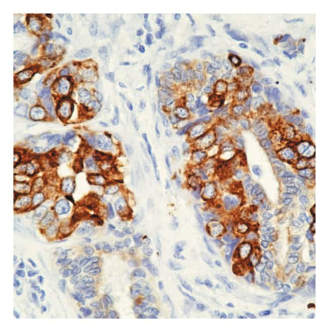 Thermo Scientific Lab Vision Cytokeratin 8 Ab-4, Mouse Monoclonal Antibody::