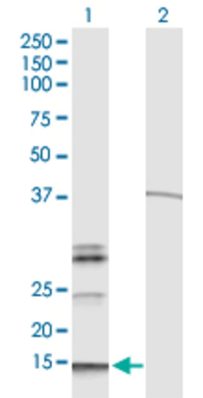 HBG1 Mouse anti-Human, Clone:M2, Abnova 100μg:Antibodies