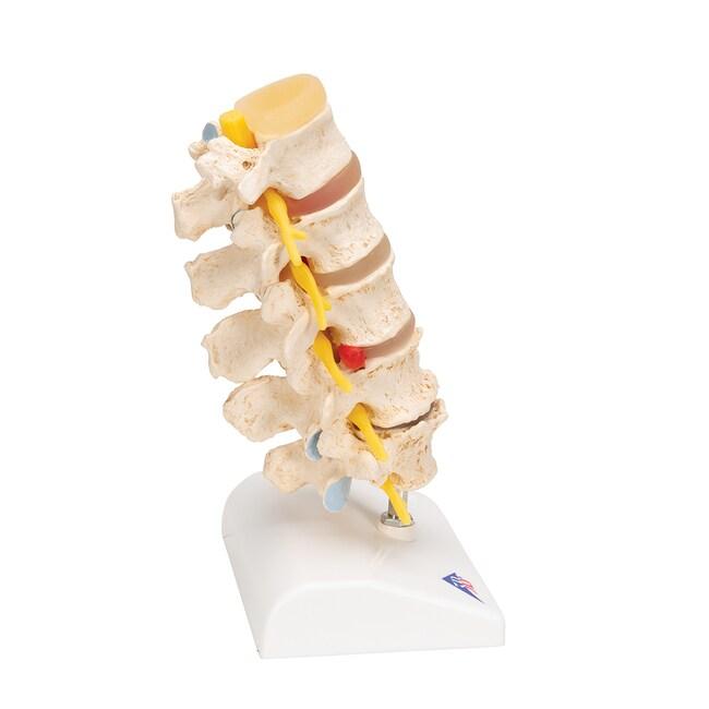 3B Scientific Stages of disc prolapse and vertebral degeneration Model