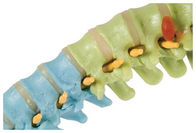 3B Scientific™Didactic Flexible Spine Model - includes 3B Smart Anatomy