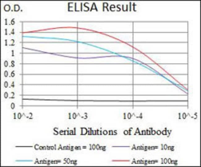 SLC27A5 Mouse anti-Human, Clone:9C4D1, Abnova 100µg