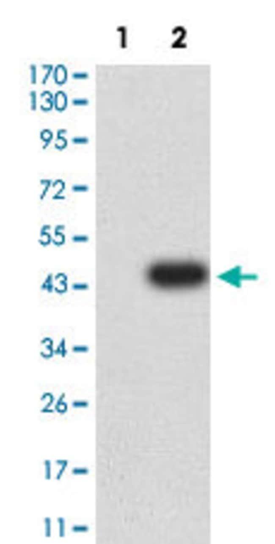 GRIK3 Mouse anti-Human, Clone:2B3D1, Abnova 100µg