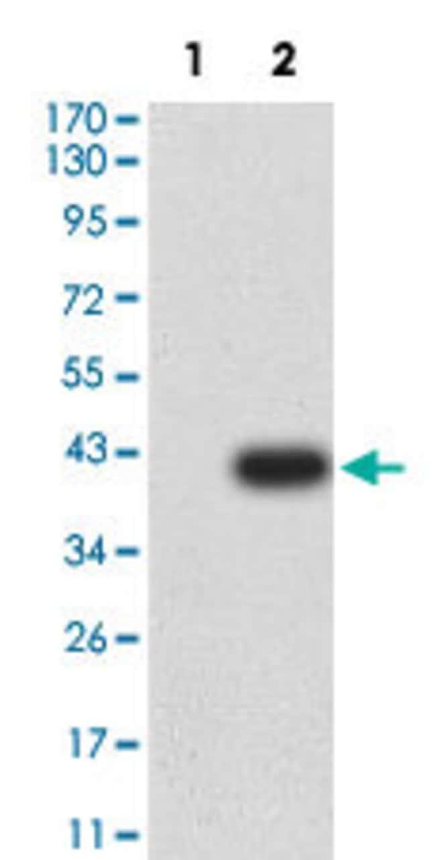 GRM1 Mouse anti-Human, Clone:5E12D8, Abnova 100µg