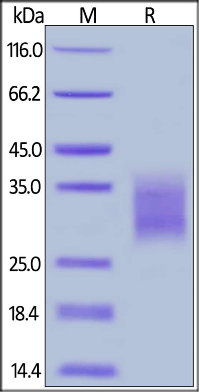ACROBiosystemsCynomolgus / Rhesus macaque 4-1BB / TNFRSF9 Protein, His Tag 100 ug ACROBiosystemsCynomolgus / Rhesus macaque 4-1BB / TNFRSF9 Protein, His Tag