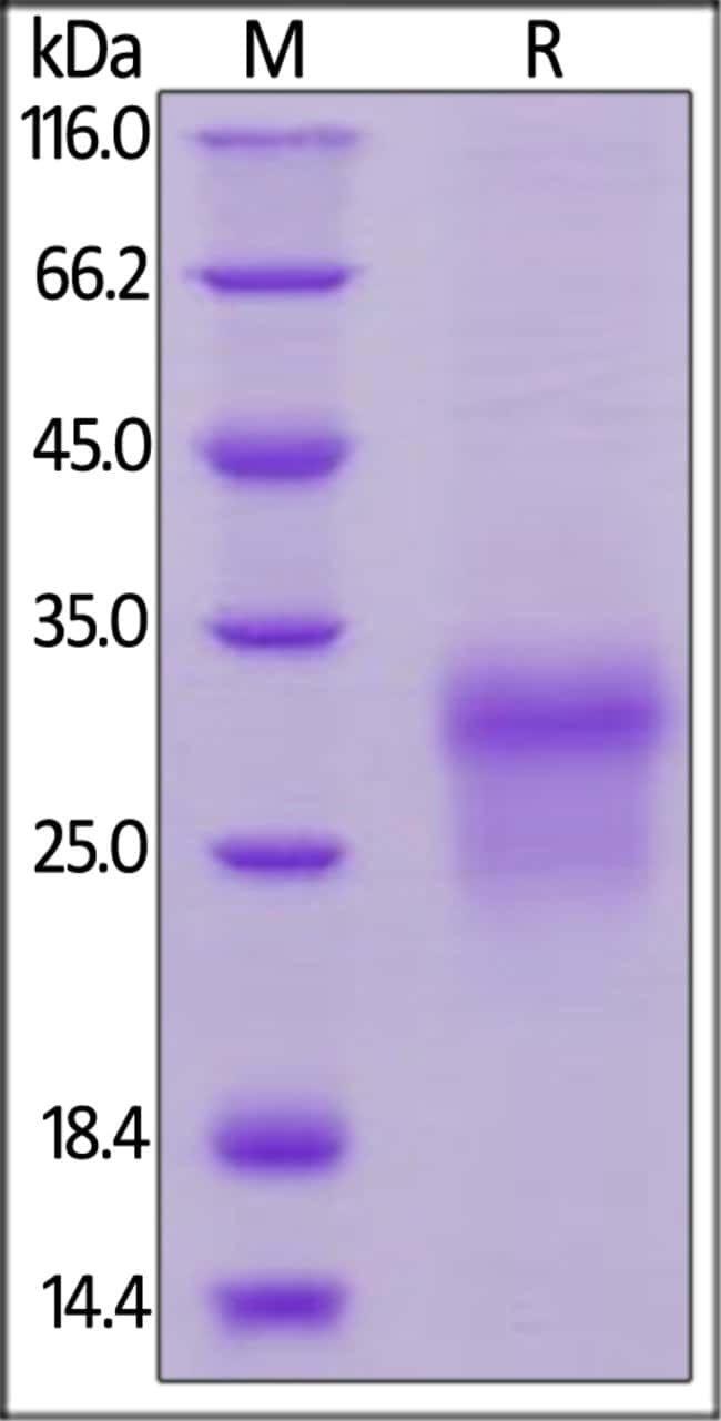 ACROBiosystemsHuman BMPR-IA / ALK-3 Protein, His Tag 200 ug ACROBiosystemsHuman BMPR-IA / ALK-3 Protein, His Tag