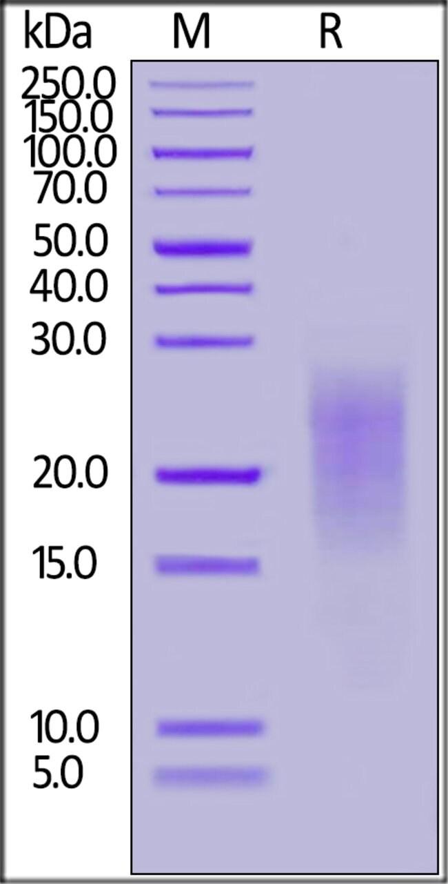 ACROBiosystemsHuman ALK-7 Protein, His Tag 100 ug ACROBiosystemsHuman ALK-7 Protein, His Tag