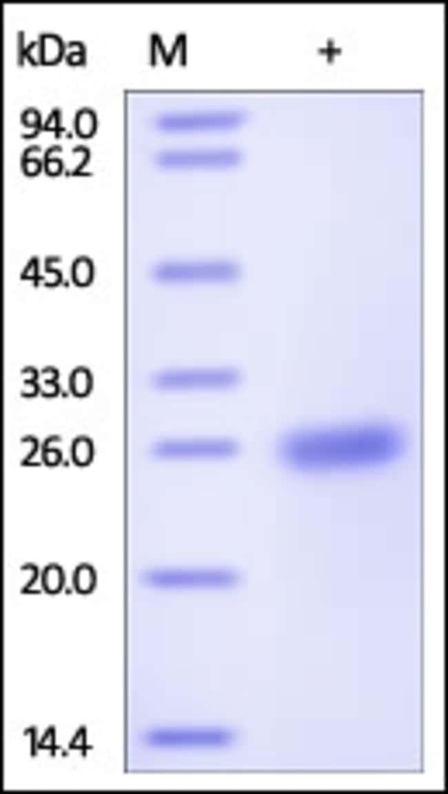 ACROBiosystems100UG Human APCS / SAP / PTX2 Protein  Produkte