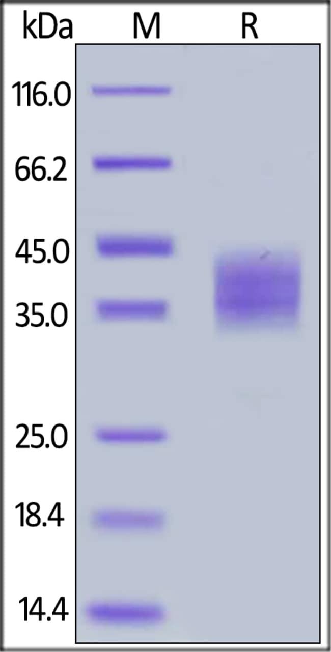 ACROBiosystemsHuman B7-H3 / CD276 Protein, His Tag 100 ug ACROBiosystemsHuman B7-H3 / CD276 Protein, His Tag