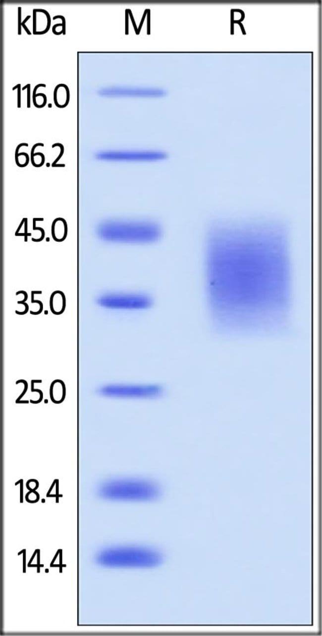 ACROBiosystemsHuman B7-H5 / Gi24 / VISTA Protein, His Tag 100 ug ACROBiosystemsHuman B7-H5 / Gi24 / VISTA Protein, His Tag