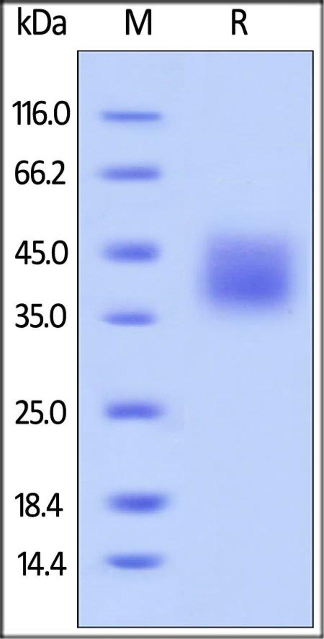 ACROBiosystemsBiotinylated Human B7-H5 / Gi24 / VISTA Protein, Avitag™,His Tag 25 ug ACROBiosystemsBiotinylated Human B7-H5 / Gi24 / VISTA Protein, Avitag™,His Tag