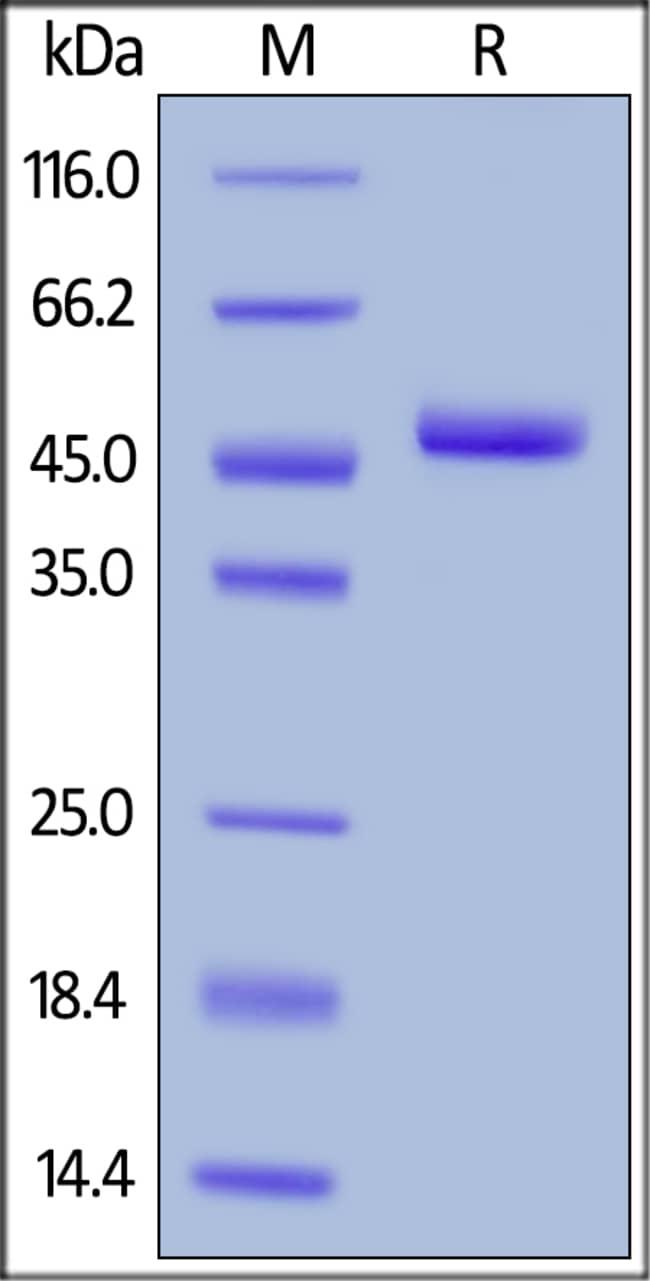 ACROBiosystemsHuman BAFF / TNFSF13B / CD257 Protein, Fc Tag 100 ug ACROBiosystemsHuman BAFF / TNFSF13B / CD257 Protein, Fc Tag