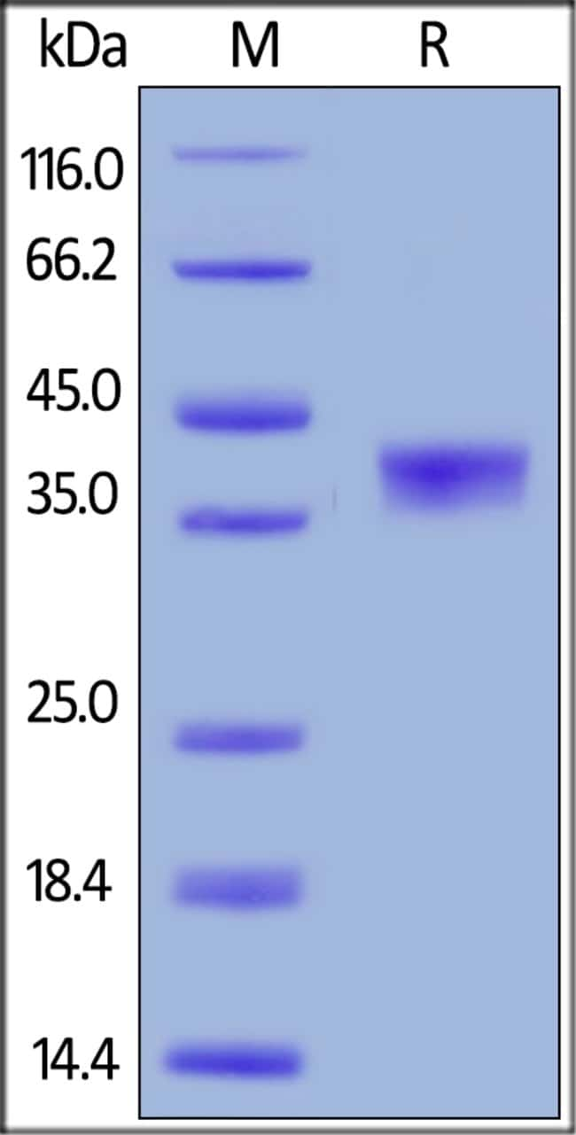 ACROBiosystemsHuman BCMA / TNFRSF17 Protein, Mouse IgG2a Fc Tag, low endotoxin 1 mg ACROBiosystemsHuman BCMA / TNFRSF17 Protein, Mouse IgG2a Fc Tag, low endotoxin
