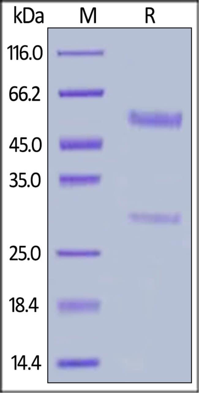 ACROBiosystems25ug Biotinylated Anti-Bevacizumab Antibodies (recommended for PK/PD)  Produkte