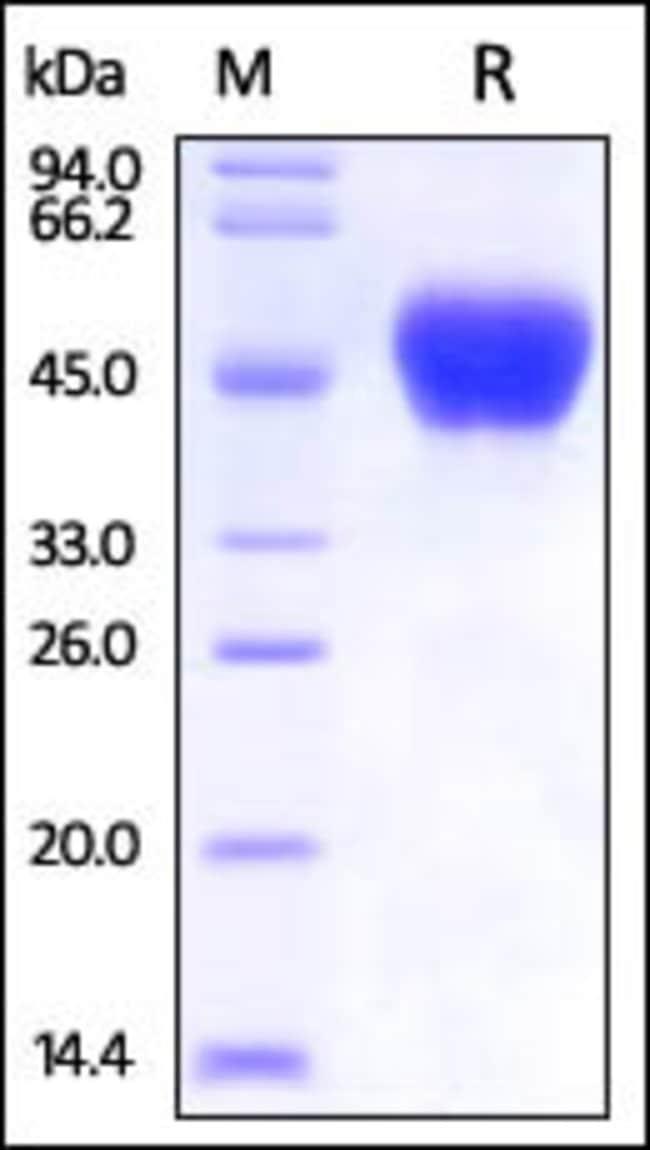 ACROBiosystemsEbolavirus BDBV (subtype Bundibugyo, strain Uganda 2007) Small/secreted Glycoprotein (sGP) Protein, His Tag 50 ug ACROBiosystemsEbolavirus BDBV (subtype Bundibugyo, strain Uganda 2007) Small/secreted Glycoprotein (sGP) Protein, His Tag