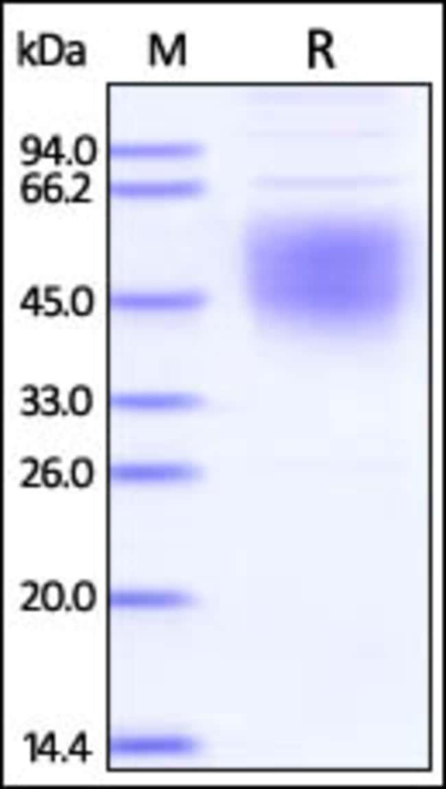 ACROBiosystemsEbolavirus (subtype Bundibugyo, strain Uganda 2007) Envelope Glycoprotein 1 (GP1) Protein, His Tag 100 ug ACROBiosystemsEbolavirus (subtype Bundibugyo, strain Uganda 2007) Envelope Glycoprotein 1 (GP1) Protein, His Tag