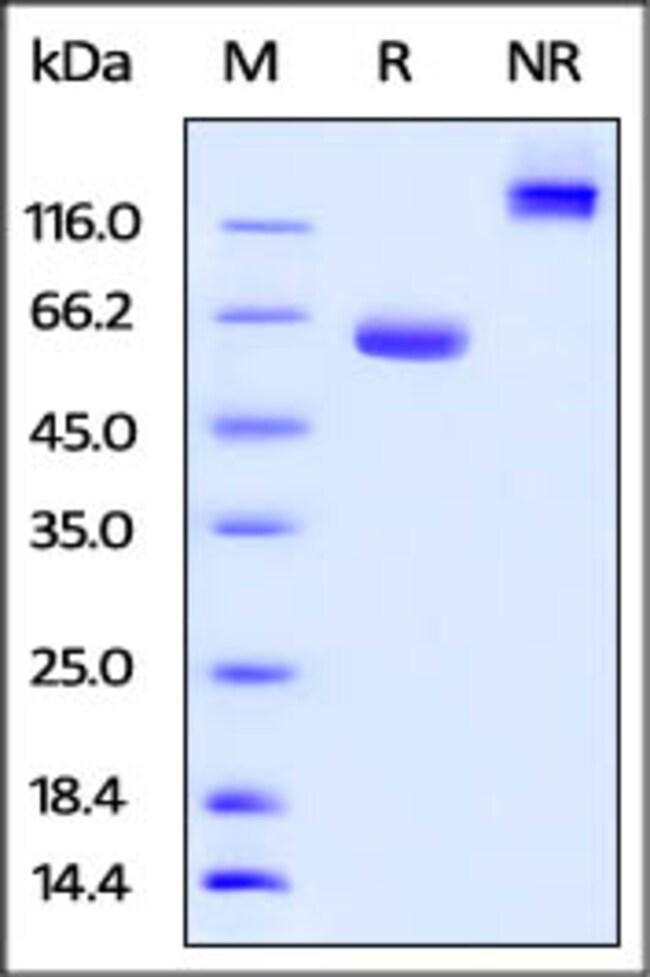 ACROBiosystemsHuman BTN1A1 / Butyrophilin Protein, Fc Tag 100 ug ACROBiosystemsHuman BTN1A1 / Butyrophilin Protein, Fc Tag