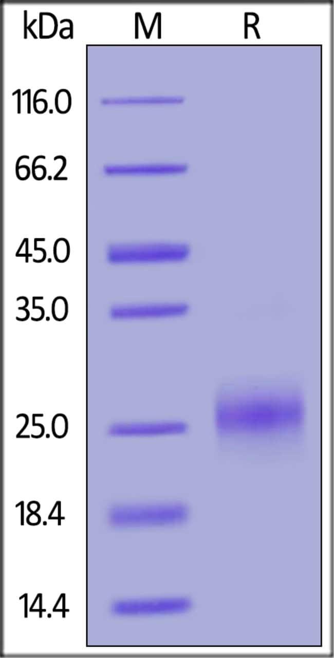 ACROBiosystems100UG Human CD160 Protein  Produkte