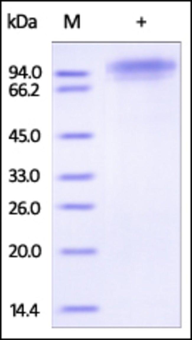 ACROBiosystems50UG Human C1q R1 / CD93 Protein  Produkte