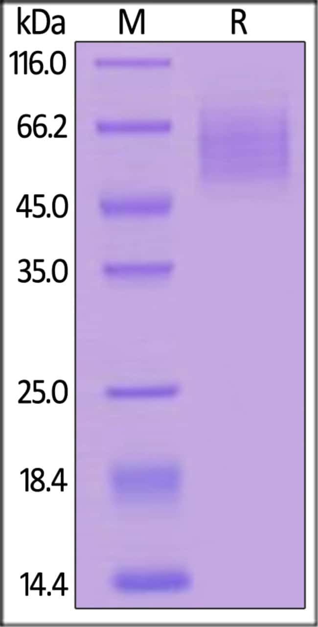 ACROBiosystemsHuman CD30 / TNFRSF8 Protein, His Tag 100 ug ACROBiosystemsHuman CD30 / TNFRSF8 Protein, His Tag