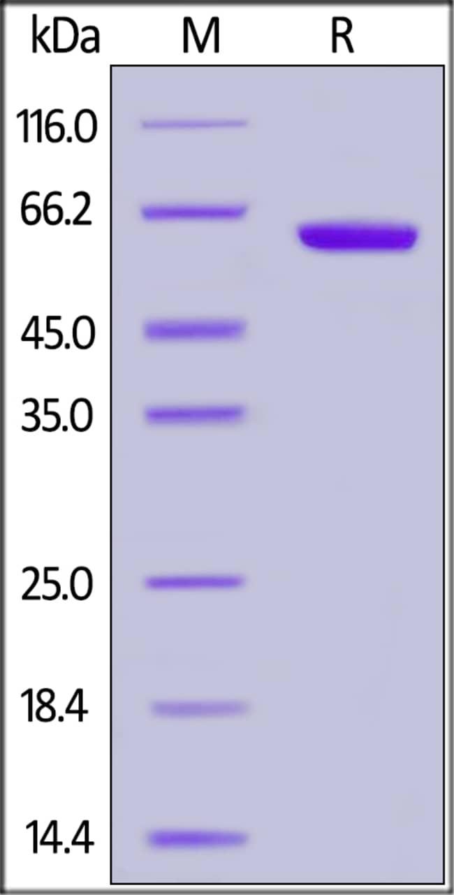 ACROBiosystemsHuman CD2 / SRBC Protein, Fc Tag 1 mg ACROBiosystemsHuman CD2 / SRBC Protein, Fc Tag