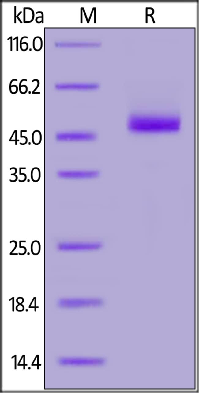 ACROBiosystemsHuman Siglec-3 / CD33 (18-132) Protein, Fc Tag 100 ug ACROBiosystemsHuman Siglec-3 / CD33 (18-132) Protein, Fc Tag