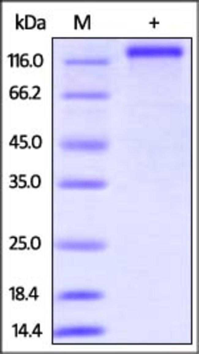 ACROBiosystemsHuman CD163 Protein, His Tag 1 mg ACROBiosystemsHuman CD163 Protein, His Tag