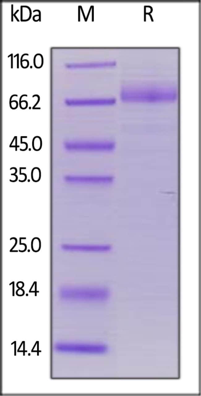 ACROBiosystemsHuman CD36 / SR-B3 Protein, His Tag 500 ug ACROBiosystemsHuman CD36 / SR-B3 Protein, His Tag