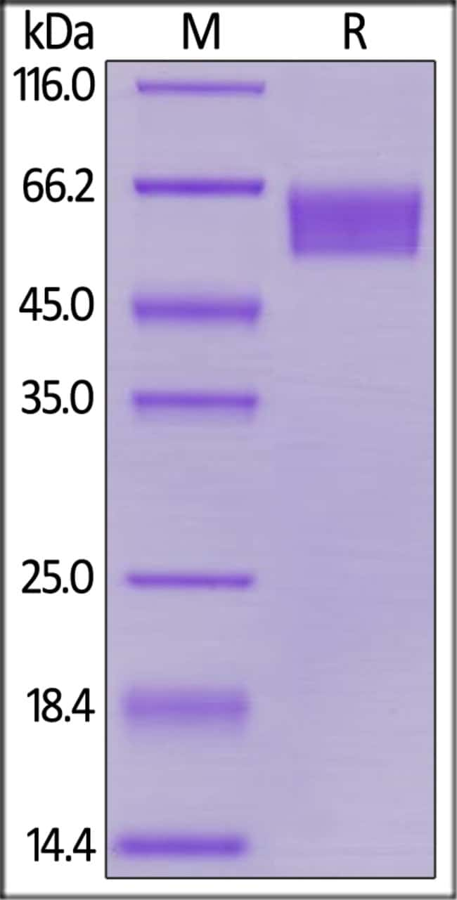 ACROBiosystemsHuman CD27 / TNFRSF7 Protein, Fc Tag 200 ug ACROBiosystemsHuman CD27 / TNFRSF7 Protein, Fc Tag
