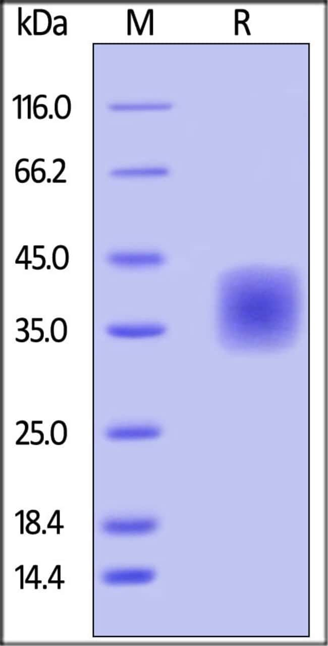 ACROBiosystemsBiotinylated Human CD47 Protein, His, Avitag™ 25 ug ACROBiosystemsBiotinylated Human CD47 Protein, His, Avitag™