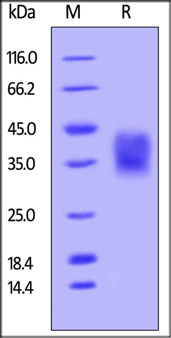 ACROBiosystemsUnconjugated Human CD47 Protein, His, Avitag™ 50 ug ACROBiosystemsUnconjugated Human CD47 Protein, His, Avitag™