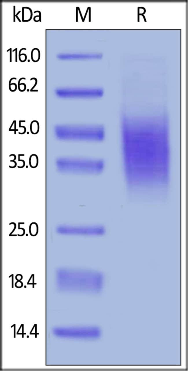 ACROBiosystemsMouse CD47 Protein, His Tag 100 ug ACROBiosystemsMouse CD47 Protein, His Tag