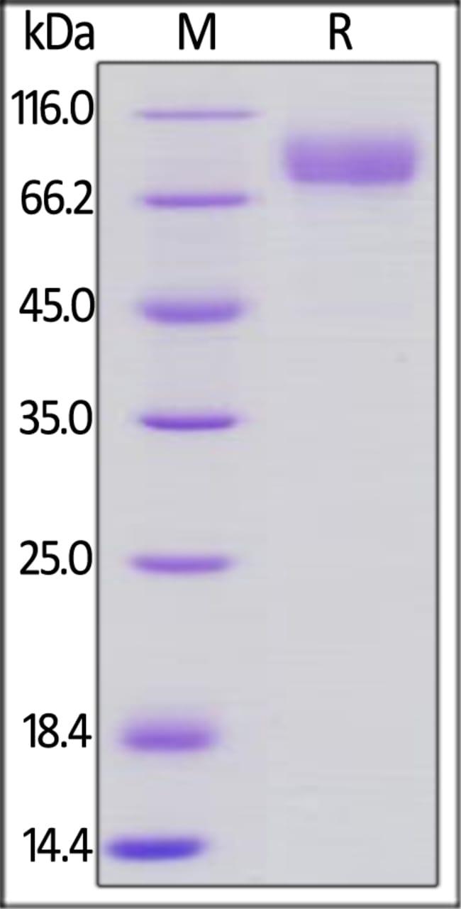 ACROBiosystemsHuman CD19 (20-291) Protein, Llama IgG2b Fc Tag, low endotoxin 100 ug ACROBiosystemsHuman CD19 (20-291) Protein, Llama IgG2b Fc Tag, low endotoxin